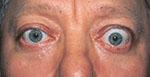 patient with thyroid eye disease