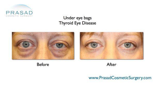 Thyroid eye surgery-Blepharoplasty-NYC