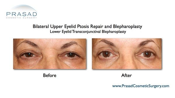 Transconjunctival Blepharoplasty NYC