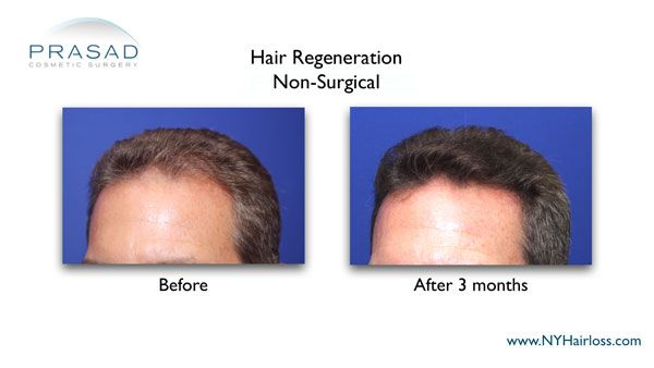 3 months after non-surgical hair loss solution