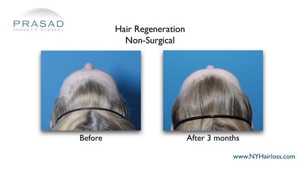 female hair loss treated with non-surgical hair regeneration 3 mos after