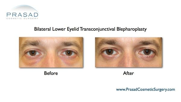 Under eye bags removal Male patient
