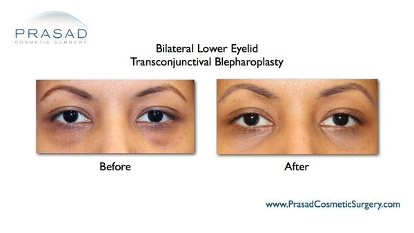 Under eye bags surgery in New York