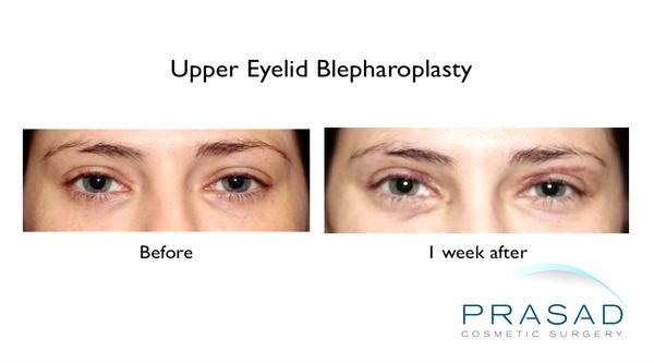 before and after Upper blepharoplasty 1 week recovery
