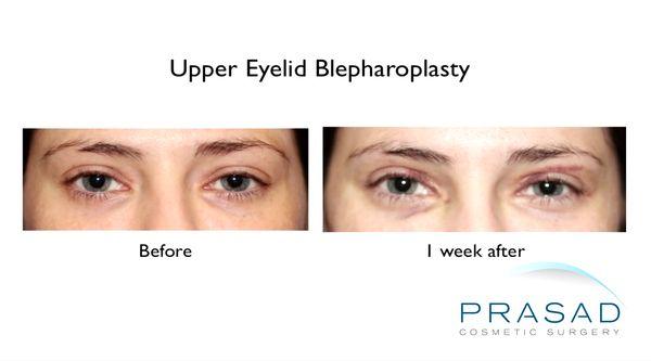 Upper blepharoplasty 1 week recovery