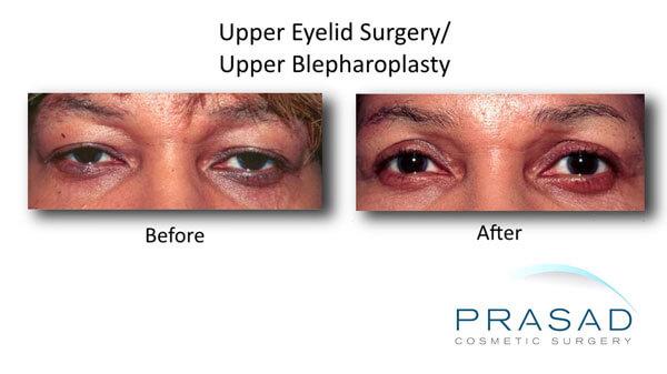 Eyelid surgery results on Dark Skin female