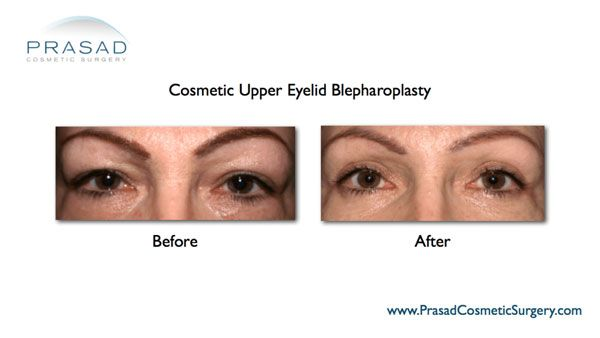 Upper Eyelid surgery-Dr Prasad-New York