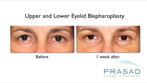 before and after lower and upper eye lift surgery recovery on female patient