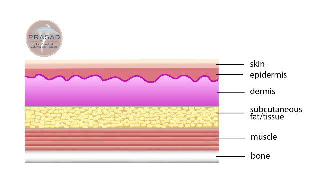 Facial fillers placed at the dermis illustration