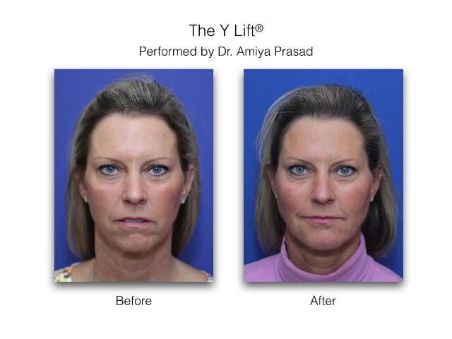 Y Lift-before and after results performed at Prasad Cosmetic Surgery
