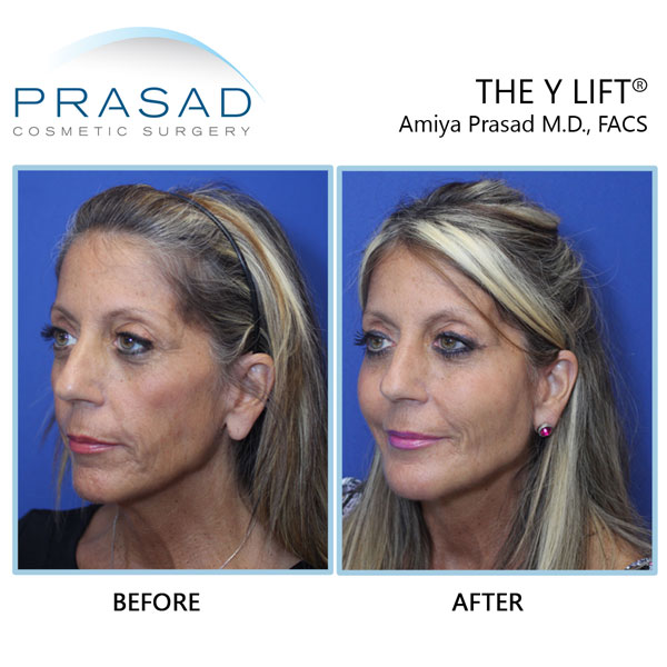 Patient look younger after cosmetic filler treatment