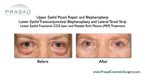 lower eyelid fractional co2 laser results