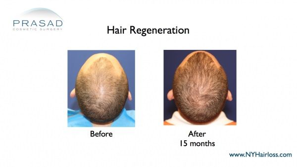 Hair restoration-Regrowth-Dr prasad