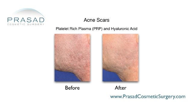 acne scars treated with prp