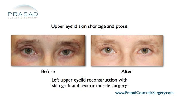 Before and after upper eyelid skin shortage and ptosis