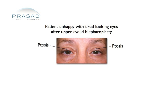 Ptosis & Blepharoplasty surgery