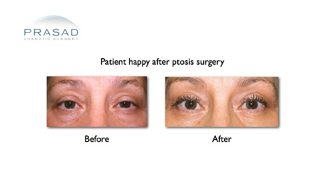 blepharoplasty patient who needed ptosis surgery