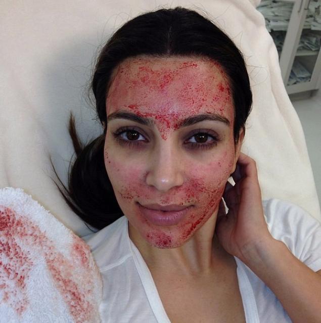 kim kardashian 'vampire facial'