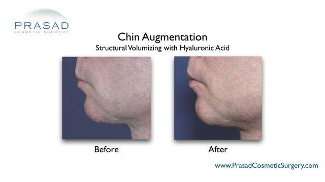 chin augmentation by Dr Amiya Prasad
