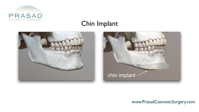 chin implant anatomical placement
