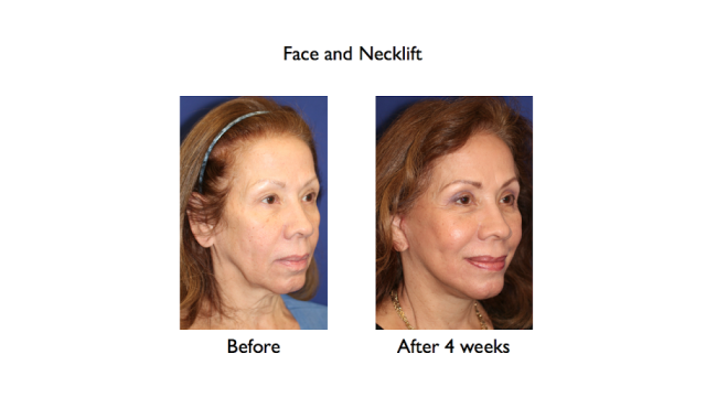 deep plane facelift and necklift before and after 4 weeks