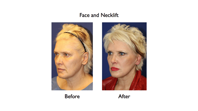 deep plane facelift before and after left three quarters