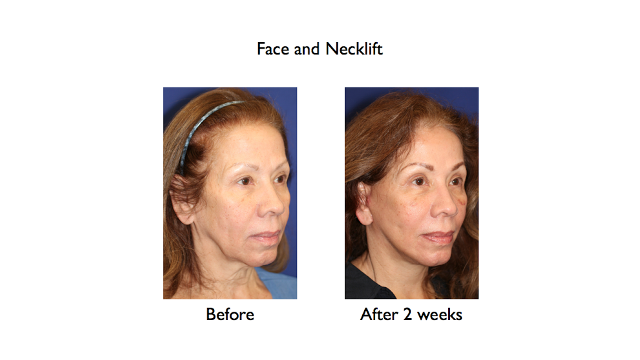 deep plane facelift and necklift before and after 2 weeks