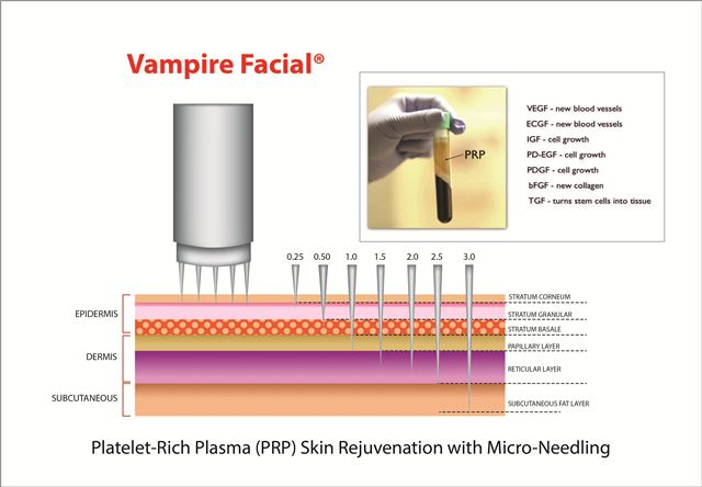 Vampire Facial® performed by Dr. Amiya Prasad