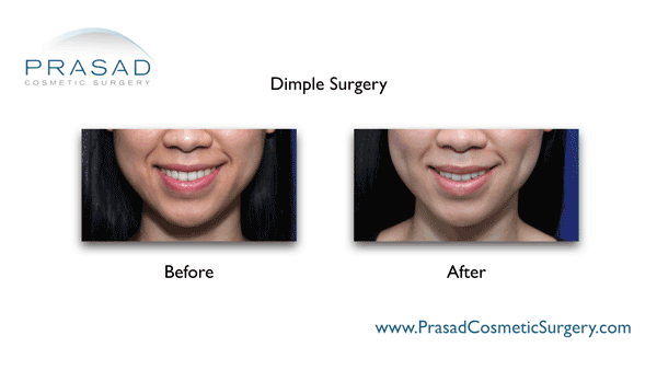 dimpleplasty before and after photo