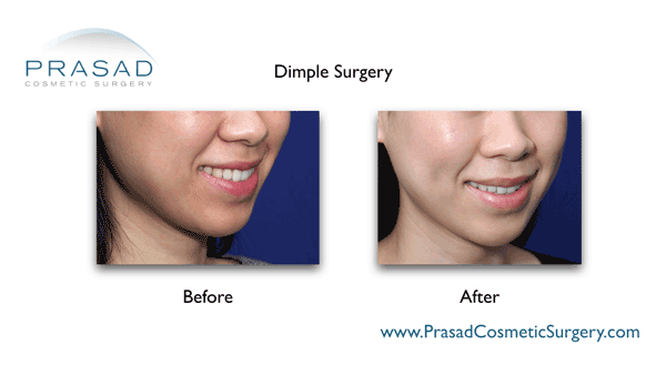 Dimple Surgery Dimple Creation Learn More New York