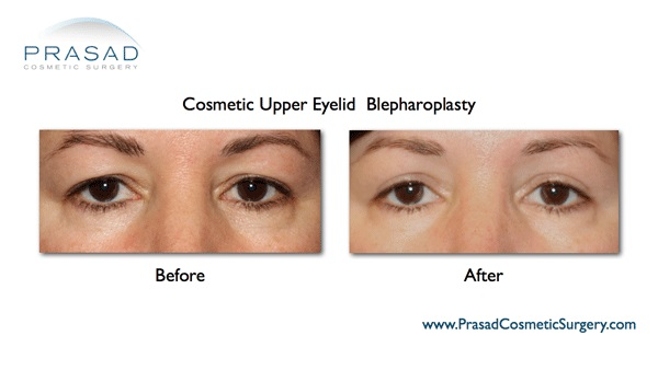 cosmetic upper eyelid surgery