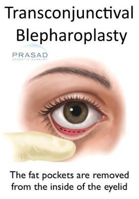 tranconjunctival blepharoplasty incision illustration