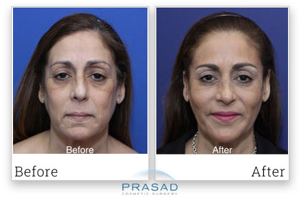 eyelid surgery experience at Prasad Cosmetic Surgery
