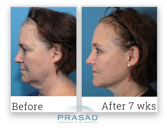 Prasad facelift review