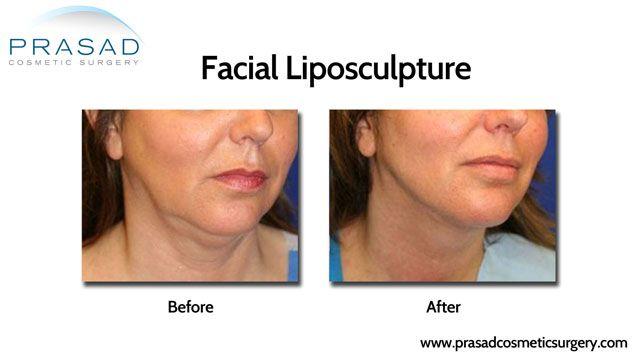 Neck liposculpture/liposuction/contouring
