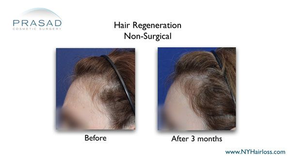hair loss temples improved after hair regeneration treatment