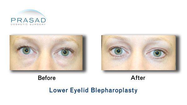 lower eyelid blepharoplasty surgery