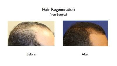 hair loss treatment-Prasad cosmetic surgery