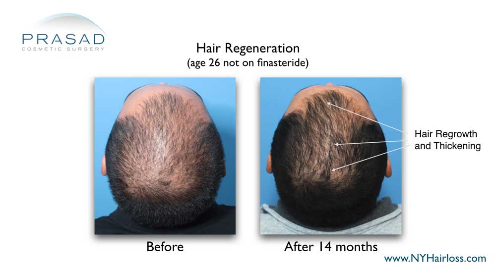 before and 14 months after one time Hair Regeneration Treatment