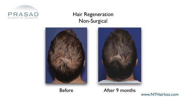 9 months after prasad hair restoration