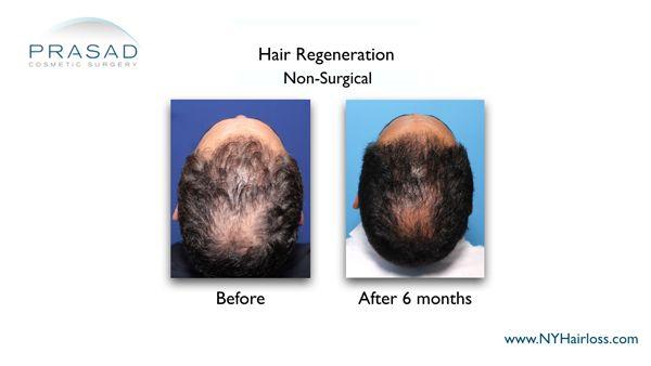 6 months after hair regeneration male patient