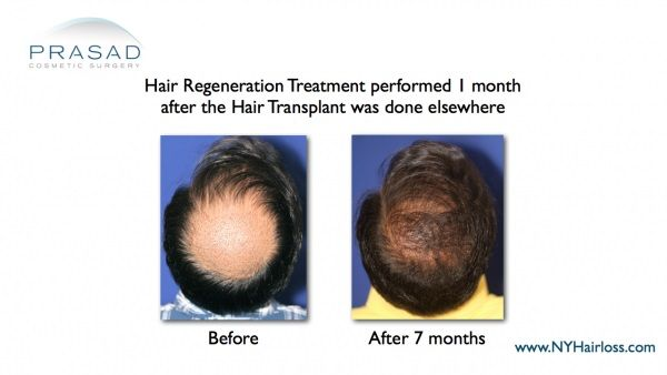 hair regrowth after hair loss