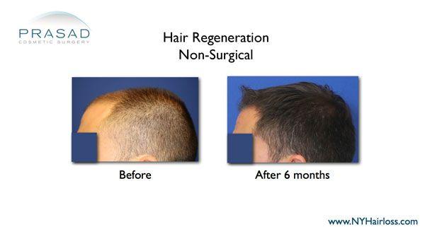 hair regrowth-stop hair loss