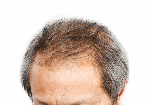 older man with hair loss problem model