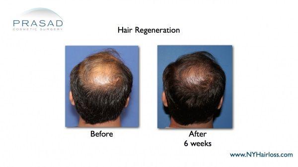 hair transplant nyc-hair loss solutions