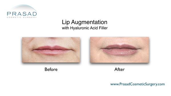 lip augmentation for aging lips