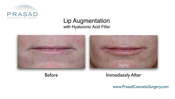 lip augmentation with restylane or juvederm before and after photo