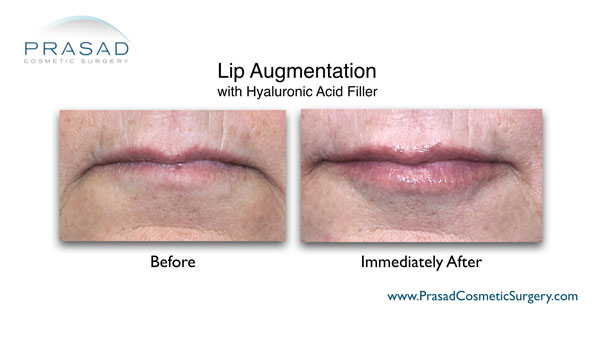 lip augmentation before and after image