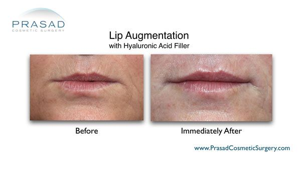 lip enhancement before and after photo