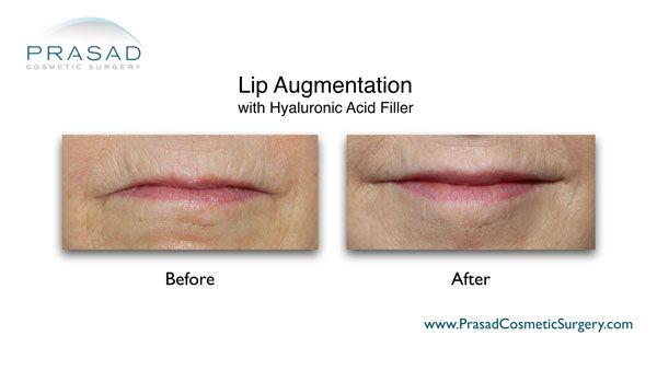 lip augmentation for aging lips before and after photo